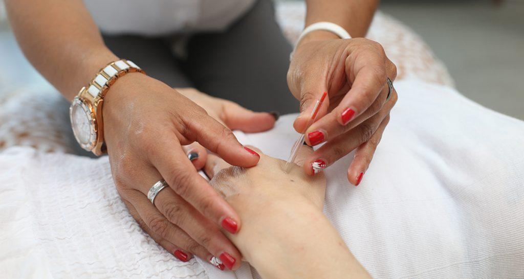 acupuntura y artritis
